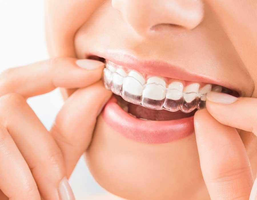 ¿Buscas un tratamiento de ortodoncia en Reus? Te ofrecemos la mejor solución
