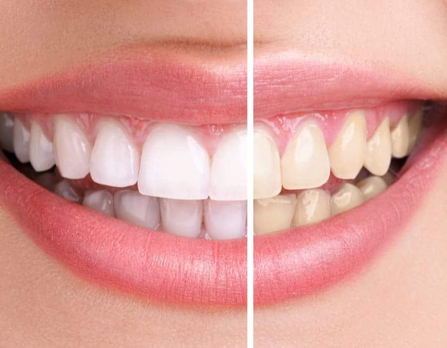 blanqueamiento-dental-lleida