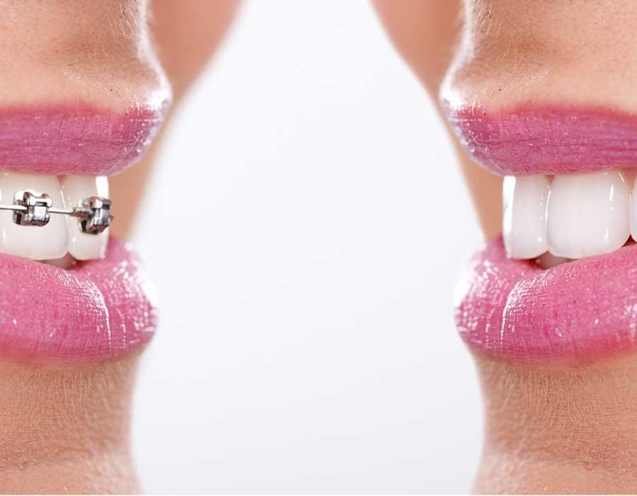 ¿Cómo encontrar el mejor ortodoncista en Reus? Aprende a elegir sin equivocarte