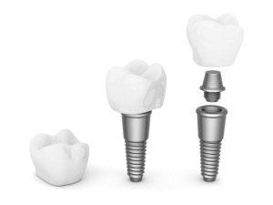 Tipo de implante dental que se puede utilizar