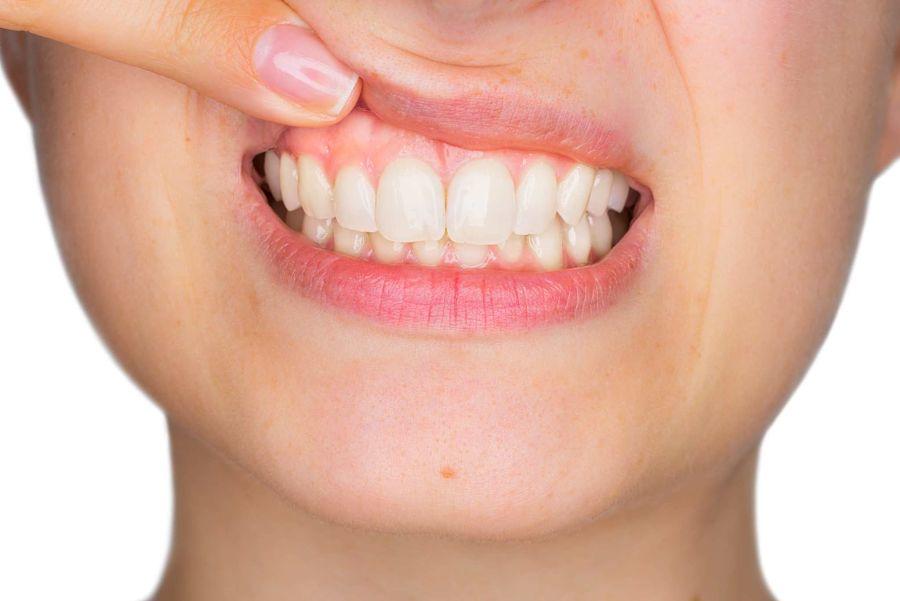 Como prevenir la enfermedad periodontal