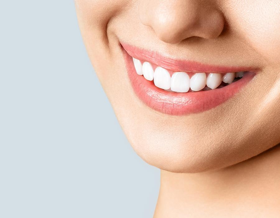 tratamientos-estética-dental