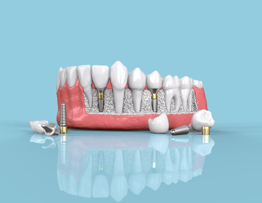 Implantes de hueso dental